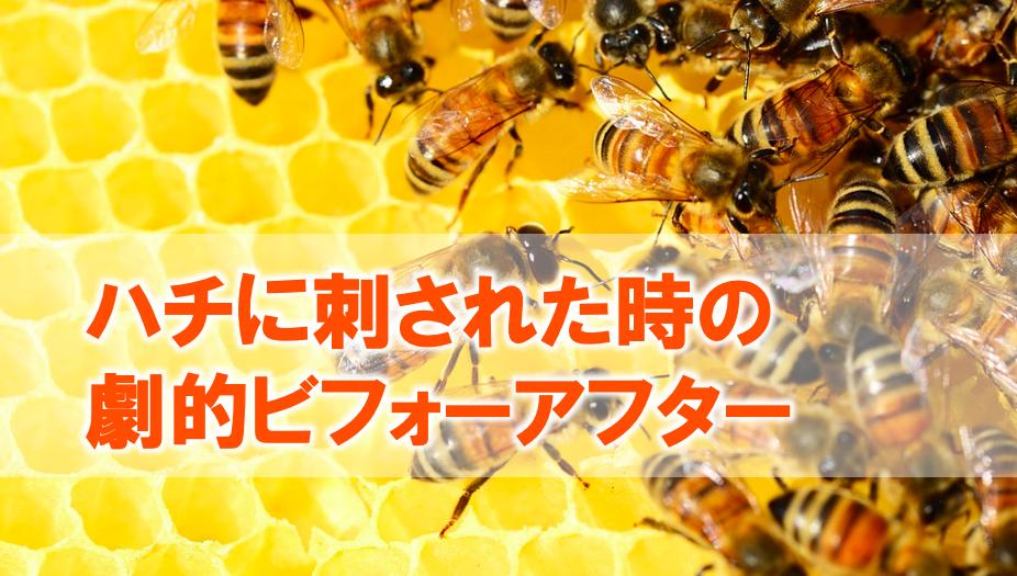 ハチに刺された時の劇的ビフォーアフター
